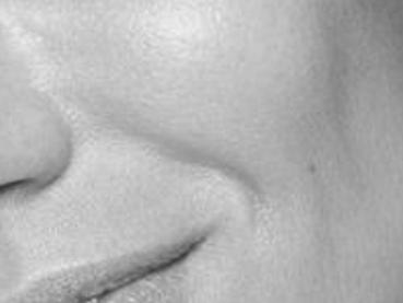trattamenti pieghe labbra acido ialuoronico